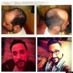 More Bald Celebrities that May Surprise You