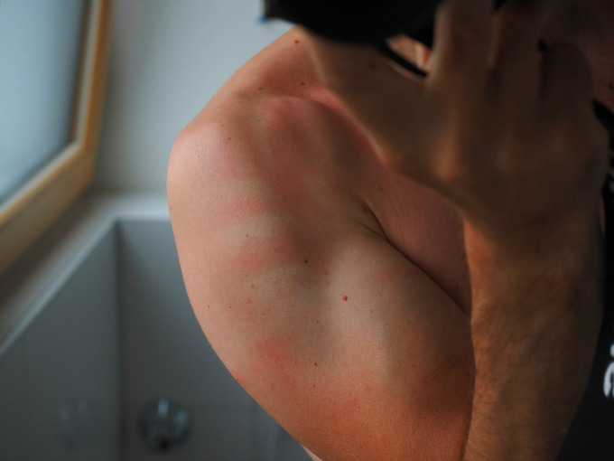 Man with a sunburned arm where they missd applying sunscreen